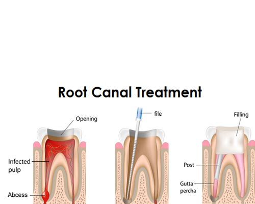 Root canal Treatment theni