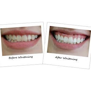 Bodinayakanur Teeth Reshaping