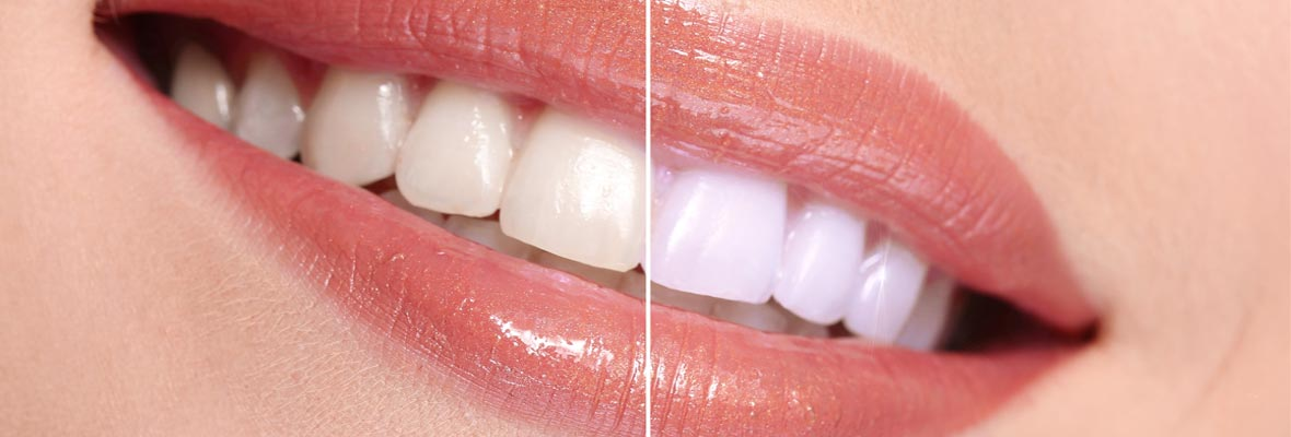 Dental whitening price in theni