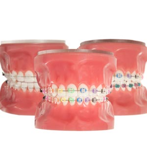 Dental Cosmetic Braces cumbum