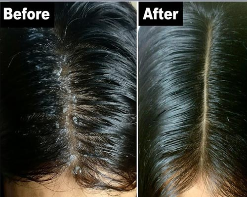 Theni Bodinayakanur Dandruff Treatment Coimbatore Theni