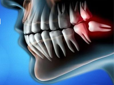 Wisdom Teeth Surgery expert theni