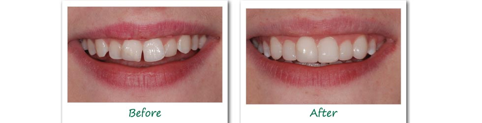 teeth reshaping in cumbum