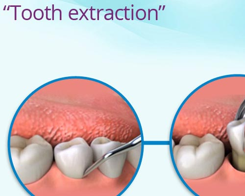 Tooth Extraction Kumily