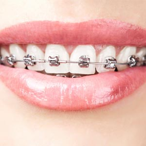 best Orthodontics expert