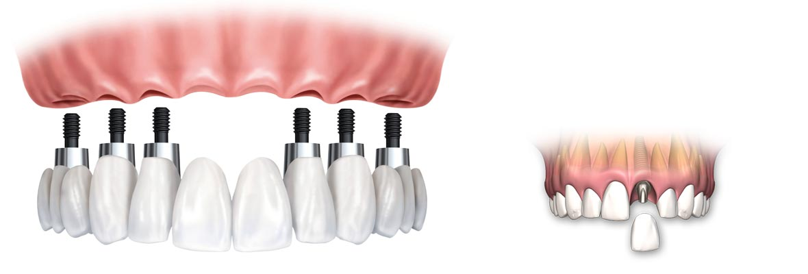 Dental Implants cost in theni