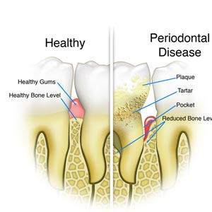 Oral Prophylaxis (Scaling) treatment
