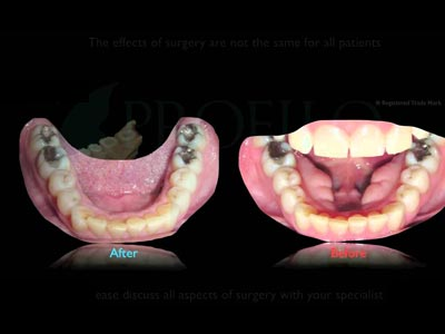 best Maxillofacial Surgery in cumbum