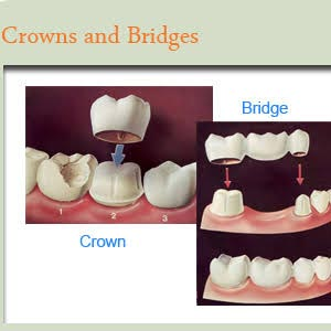 Best Dental Crowns and Bridge Fixing