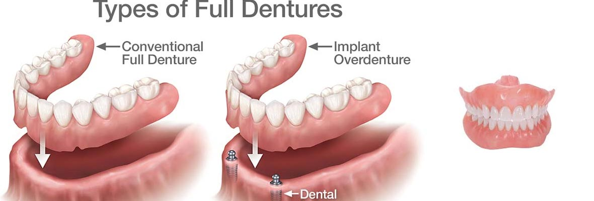Removable-Dentures