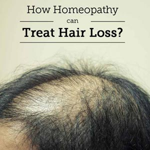 homeopathy hair loss treatment