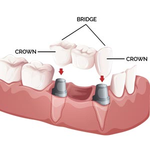 dental CROWNS & BRIDGES treatment in theni