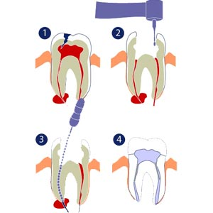 root canal treatment in theni