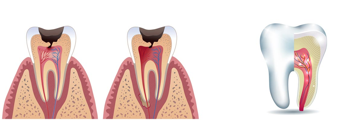 Top Root Canal Treatment in cumbum