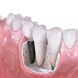 Complete Dental Implant treatment in theni